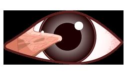目の病気 翼状片