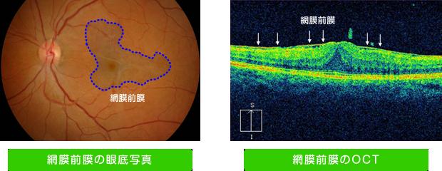網膜前膜・黄斑前膜