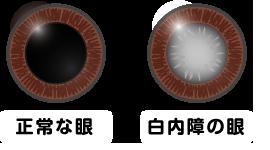 目の病気 白内障