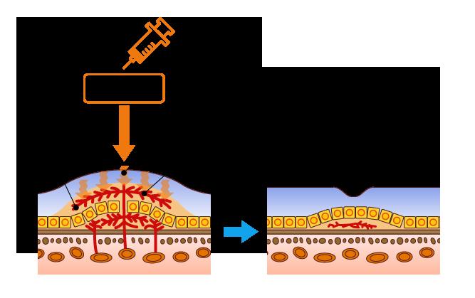 抗血管新生薬療法